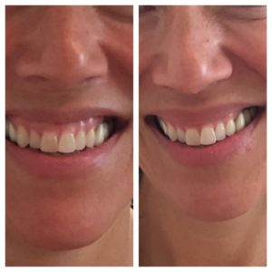 """Our patient received Botox to the upper lip for a """"life changing smile""""."""